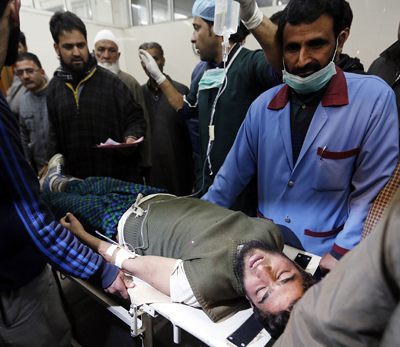 An injured civilian being taken for treatment at SMHS hospital in Srinagar on Sunday. -Excelsior Photo
