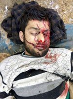 Dead body of top LeT commander Abu Musaib.