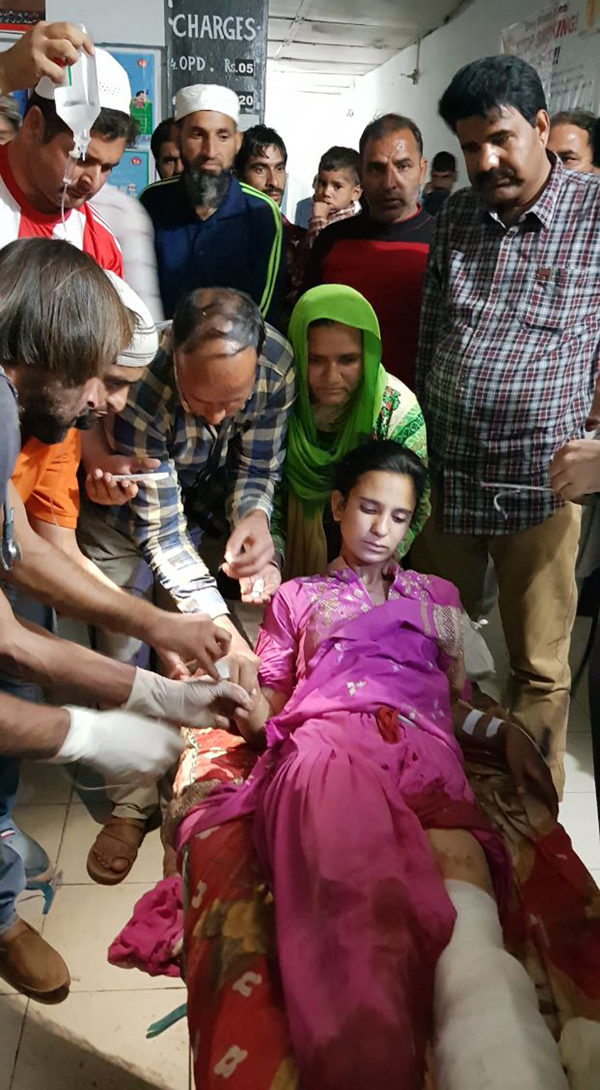 An injured minor girl being treated at Mendhar hospital on Saturday.