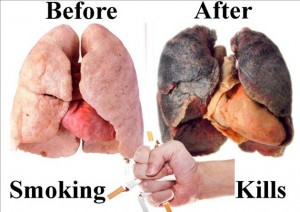 Treatment of Lung Caner