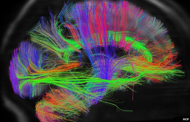 New Technology To Map Brain Wiring