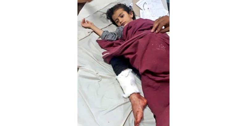 A minor girl admitted in hospital after being shot at by the militants in Sopore on Saturday.